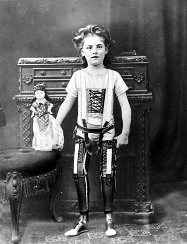 Artificial-legs-UK-ca-1890