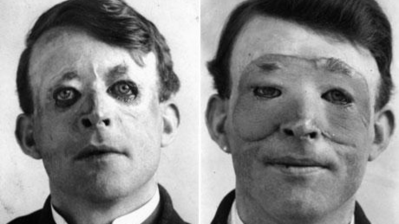 Walter-Yeo-one-of-the-first-to-undergo-an-advanced-plastic-surgery-and-a-skin-transplant-1917
